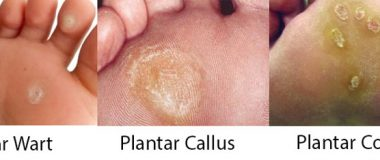 Best Plantar Callus Removal Treatment