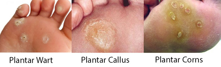 Warts infections and calluses